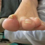 footcare_img01